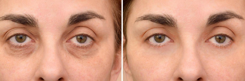 Bräunliche Augenringe durch Hyperpigmentierung