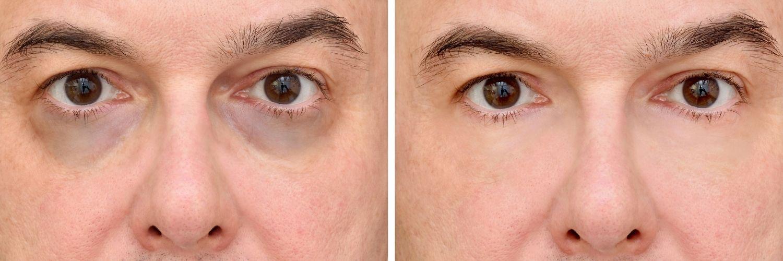 Bläuliche Augenringe aufgrund der darunterliegenden Gefäße